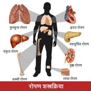 Read more about the article रोपण शस्त्रक्रिया (Transplantation surgery)