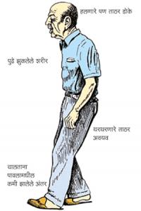 Read more about the article कंपवात (Parkinson's disease)