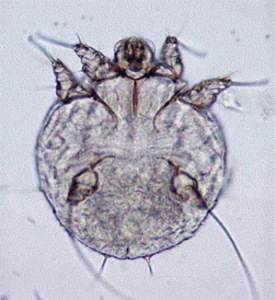 Read more about the article खरूज (Scabies)
