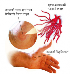 Read more about the article गजकर्ण (Ringworm)