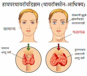 Read more about the article गलगंड (Goitre)