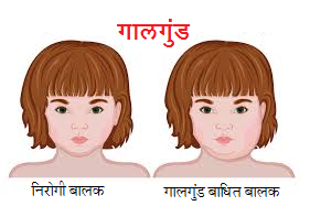 Read more about the article गालगुंड (Mumps)