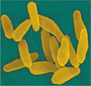 घटसर्प (Diphtheria)