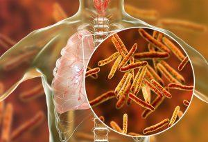 क्षयरोग जीवाणू (Mycobacterium tuberculosis)