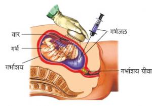 गर्भजलचिकित्सा (Amniocentesis)