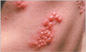 Read more about the article नागीण (Herpes zoster)