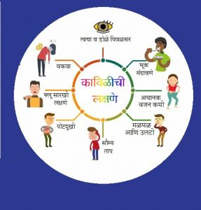 Read more about the article कावीळ (Jaundice)