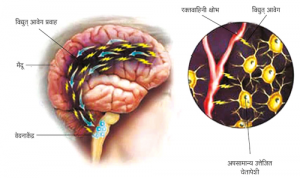Read more about the article अर्धशिशी (Migraine)