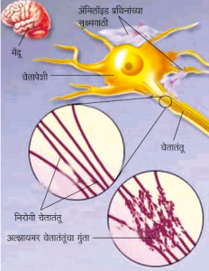 Read more about the article अल्झायमर विकार (Alzheimer disease)