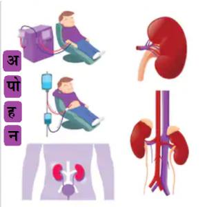 अपोहन (Dialysis)
