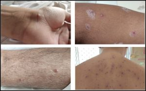 Read more about the article कांजिण्या (Chickenpox/Varicella)