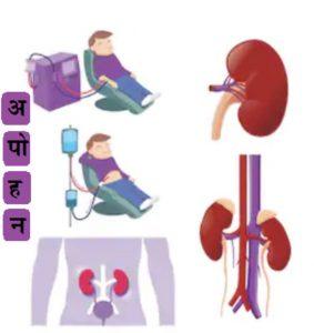 Read more about the article डायलॅसिस (Dialysis) : पहा अपोहन.