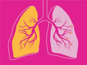 दीर्घकालीन अवरोधी फुप्फुसरोग (Chronic Obstructive pulmonary diseases)