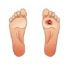 कोथ (Gangrene)