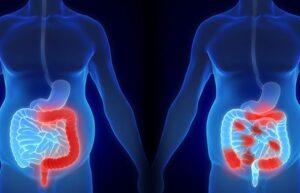 प्रदाहक आंत्ररोग (Inflammatory bowel diseases, IBD)
