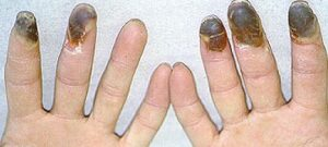 Read more about the article ब्यूर्गर रोग (Buerger's disease/Thromboangiitis Obliterans)