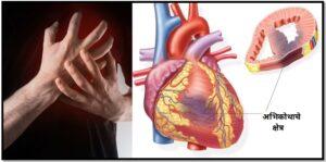 हृद्स्नायु अभिशोष आणि परिचर्या (Emergency Nursing Care of myocardial infarction)