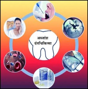 Read more about the article अब्जांश तंत्रज्ञान : दंतचिकित्सा (Nanotechnology in dentistry)