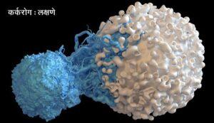 कर्करोग : लक्षणे  (Cancer symptoms)