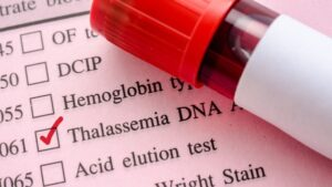Read more about the article थॅलॅसेमिया (Thalassemia)
