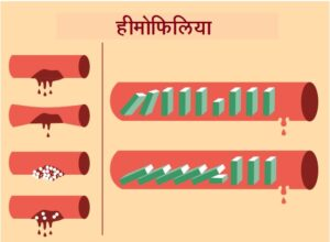 हीमोफिलिया/रक्तस्रावी रोग (Hemophilia)
